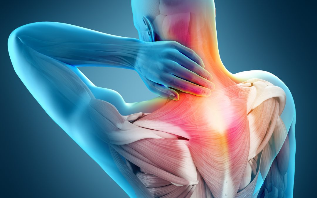 Headaches: More Than Just A Pain In The Head!